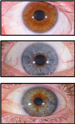 What Is Iridology