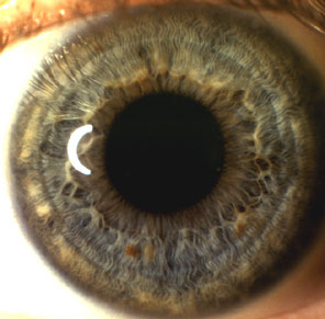 Iridology Examination Sample Iris